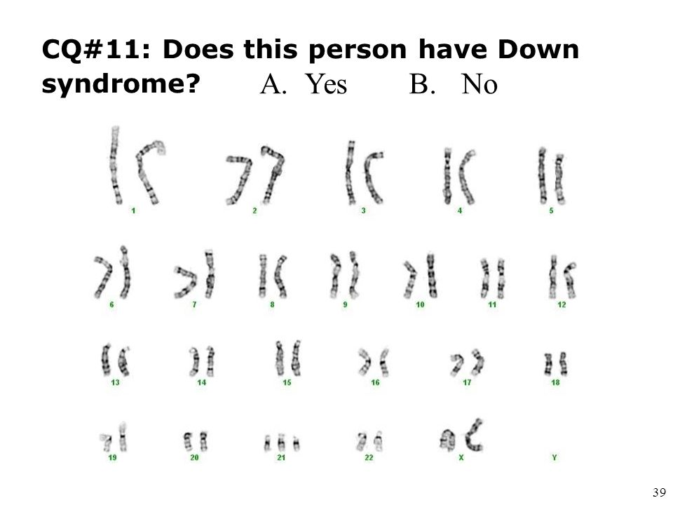 CQ#11: Does this person have Down syndrome