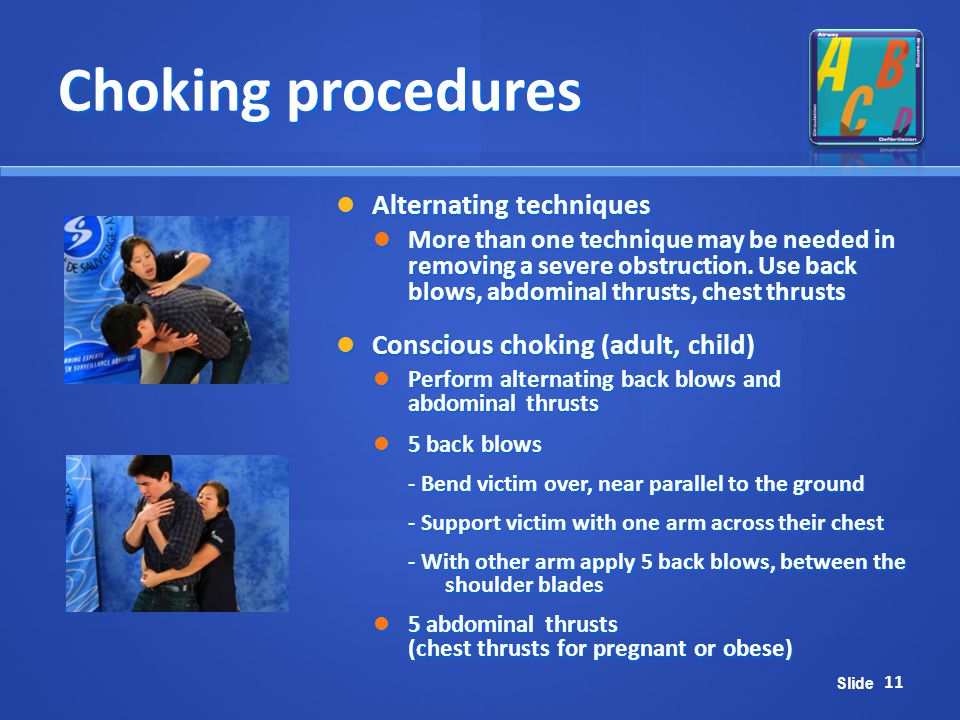Choking procedures Alternating techniques