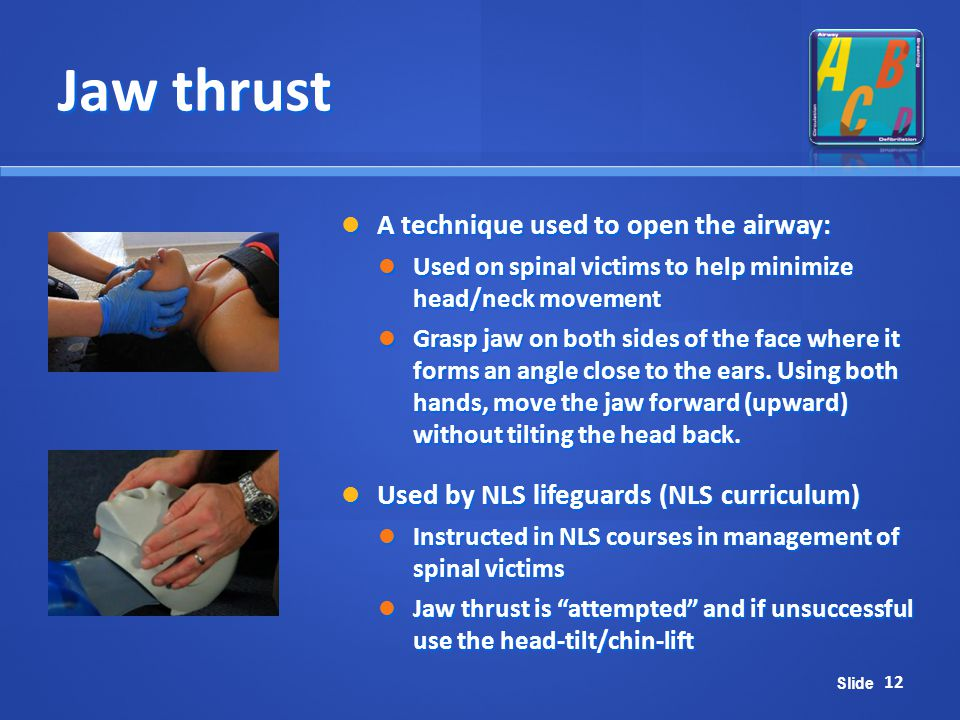 Jaw thrust A technique used to open the airway: