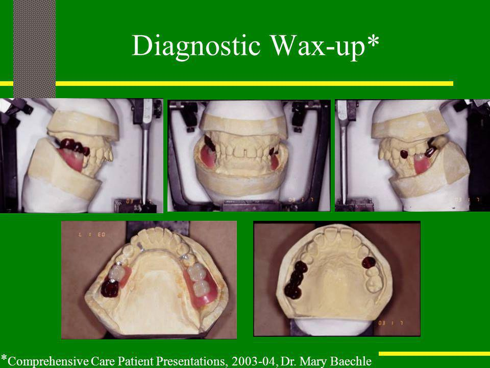 Diagnostic Wax-up* *Comprehensive Care Patient Presentations, 2003-04, Dr. Mary Baechle
