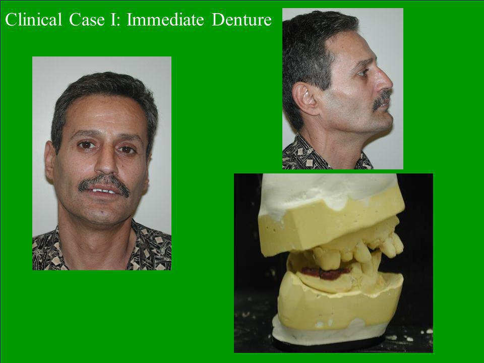 Clinical Case I: Immediate Denture