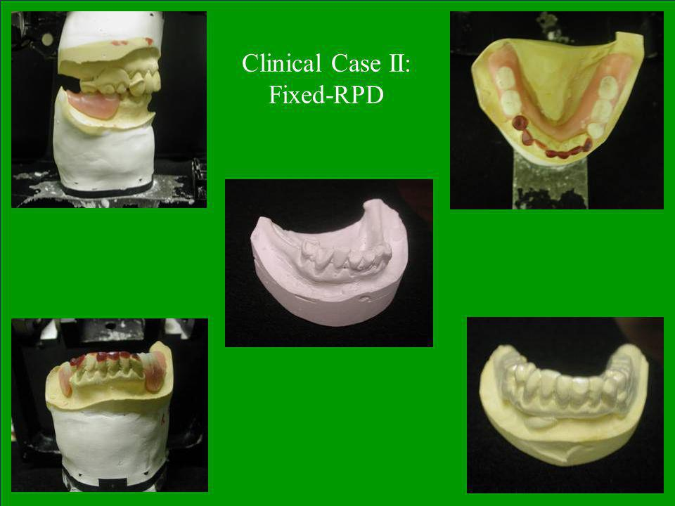 Clinical Case II: Fixed-RPD