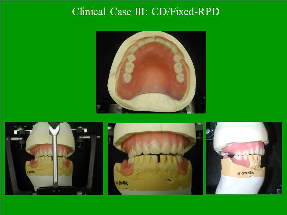 Clinical Case III: CD/Fixed-RPD