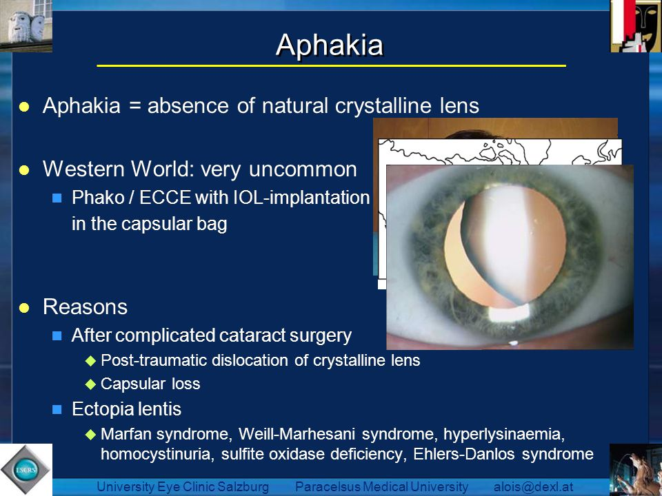 Aphakia Aphakia = absence of natural crystalline lens