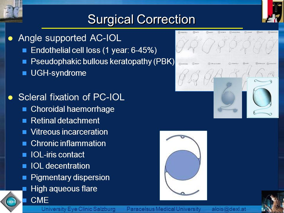 Surgical Correction Angle supported AC-IOL Scleral fixation of PC-IOL