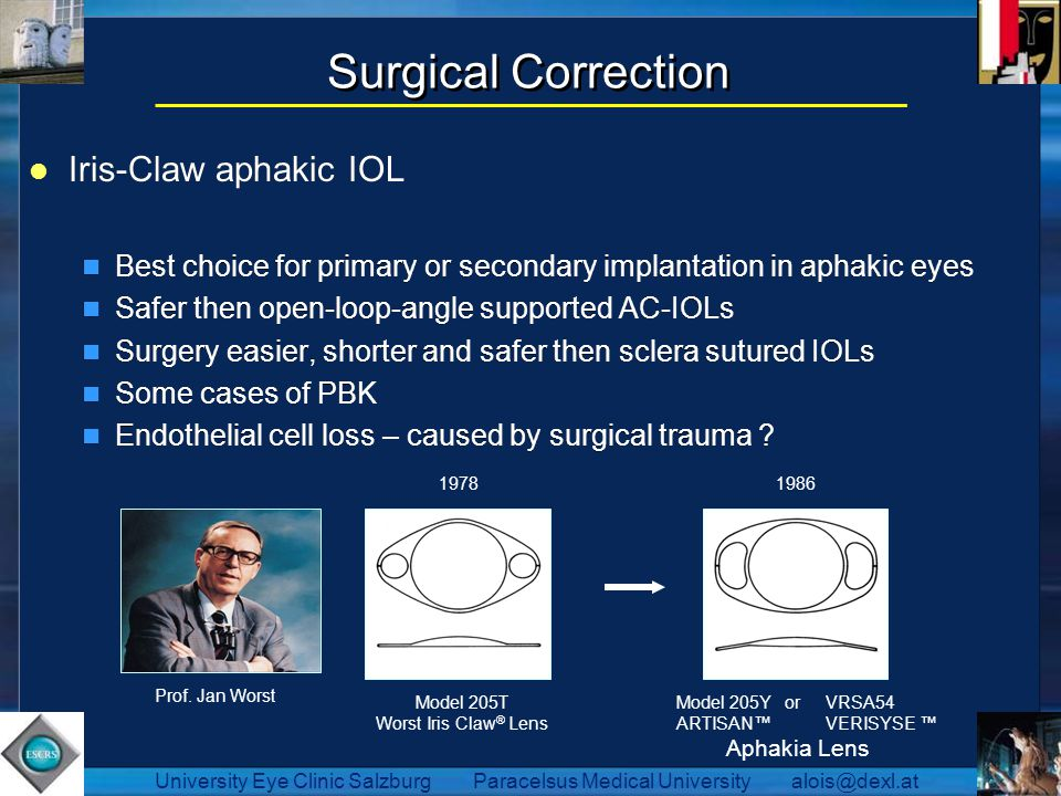 Surgical Correction Iris-Claw aphakic IOL