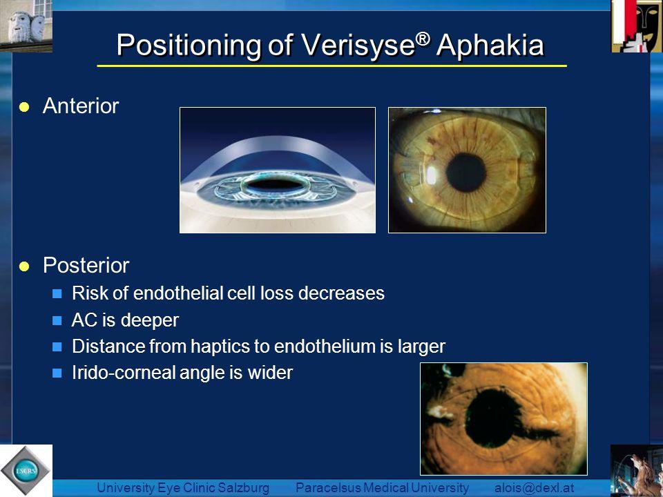 Positioning of Verisyse® Aphakia