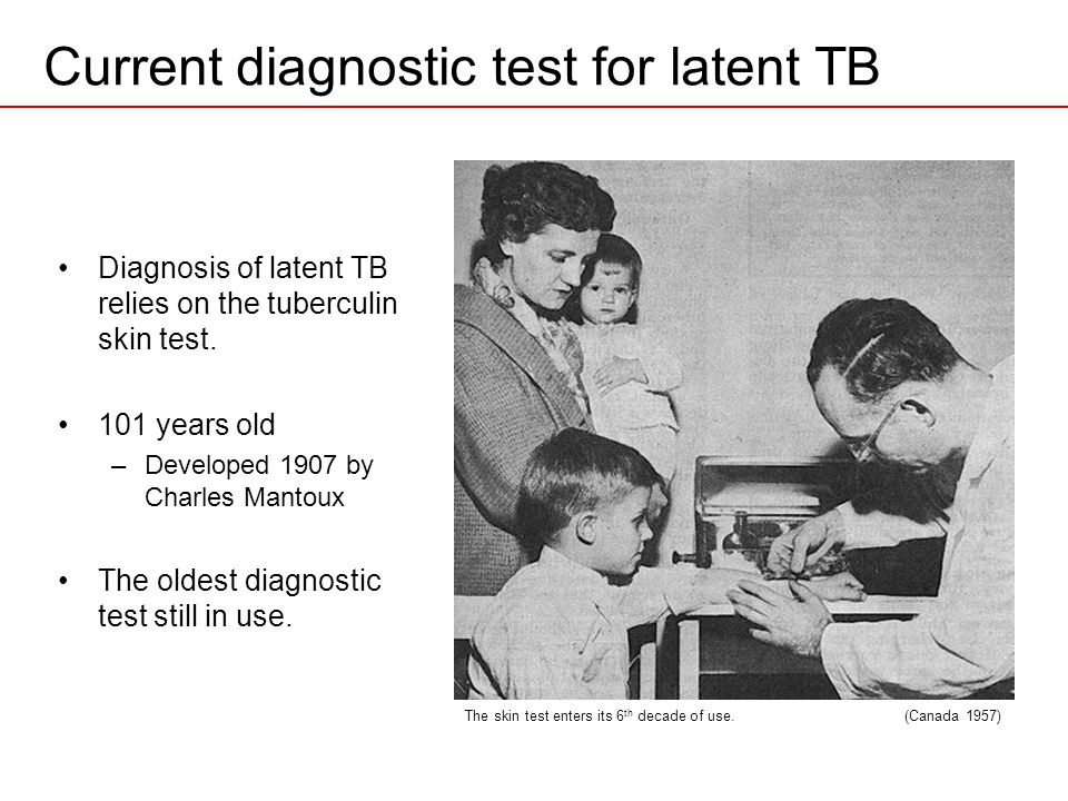 Current diagnostic test for latent TB