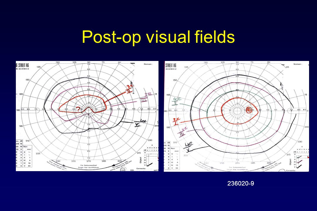 Post-op visual fields 236020-9