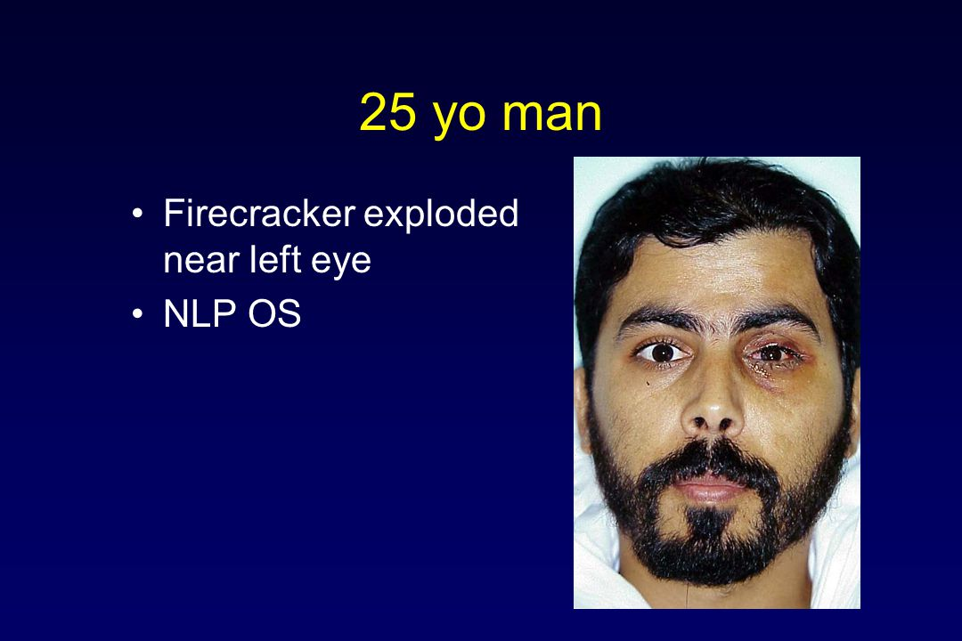 25 yo man Firecracker exploded near left eye NLP OS