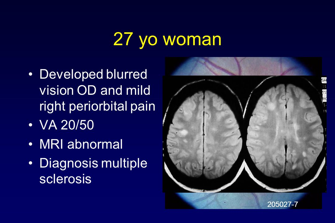 27 yo woman Developed blurred vision OD and mild right periorbital pain. VA 20/50. MRI abnormal. Diagnosis multiple sclerosis.