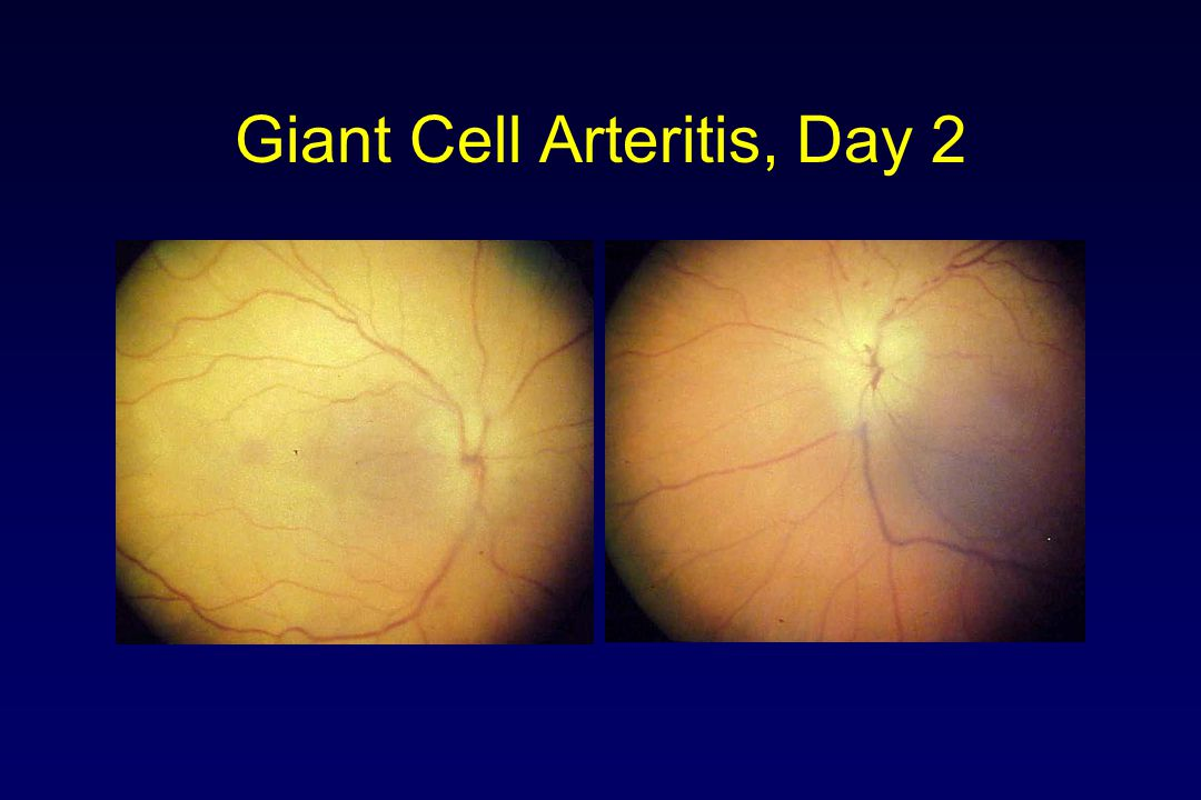 Giant Cell Arteritis, Day 2