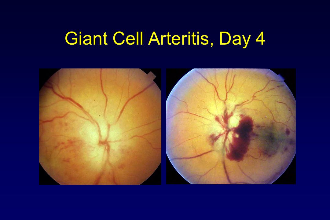 Giant Cell Arteritis, Day 4