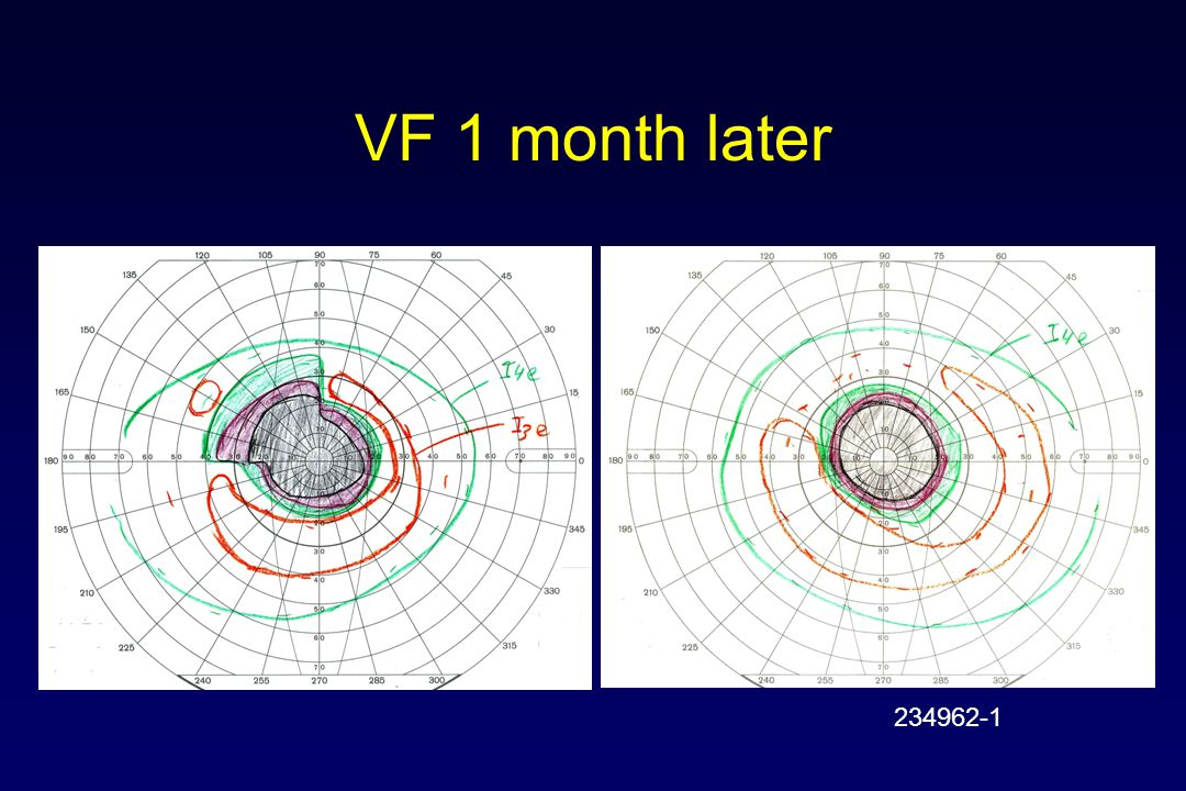 VF 1 month later 234962-1