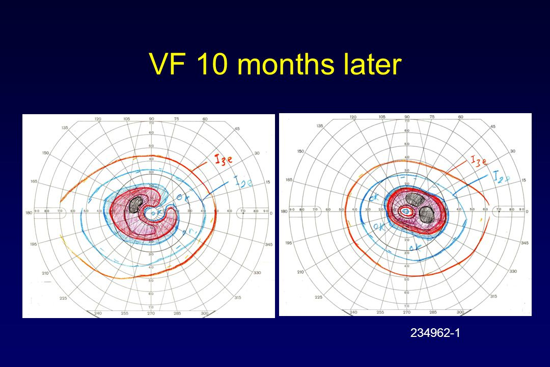 VF 10 months later 234962-1