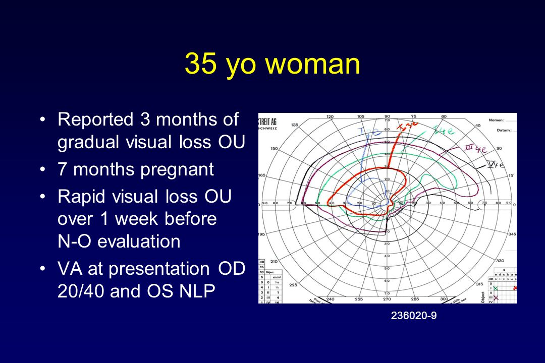 35 yo woman Reported 3 months of gradual visual loss OU