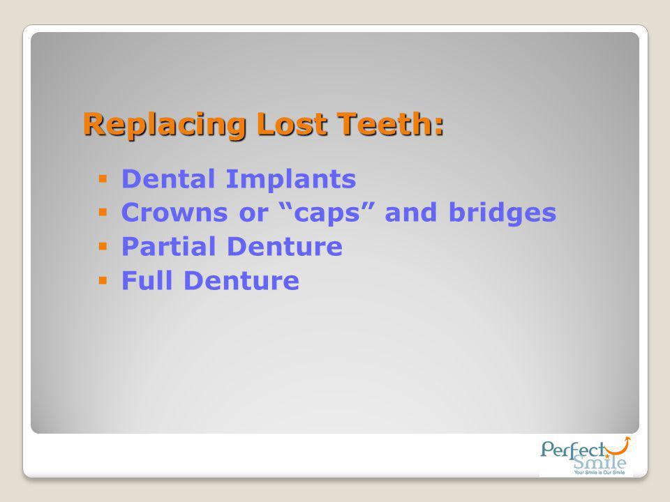 Replacing Lost Teeth: Dental Implants Crowns or caps and bridges