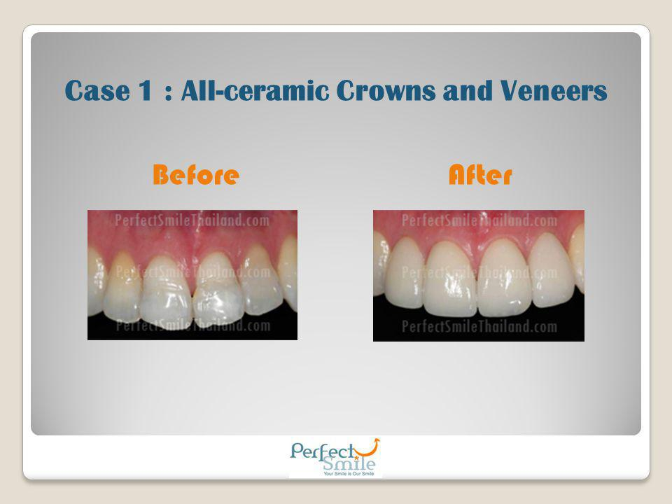 Case 1 : All-ceramic Crowns and Veneers