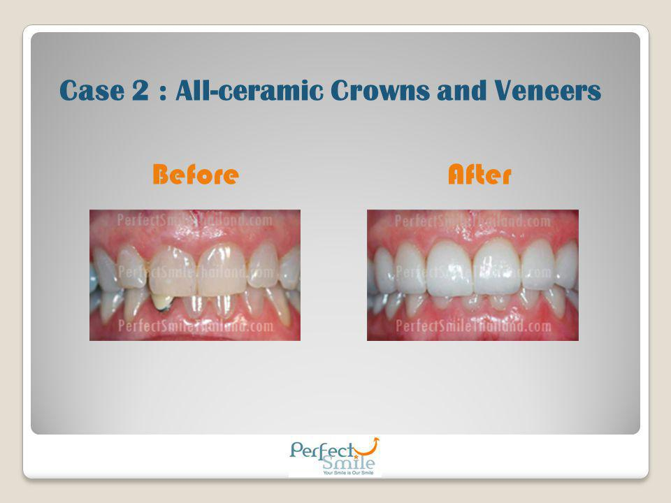 Case 2 : All-ceramic Crowns and Veneers