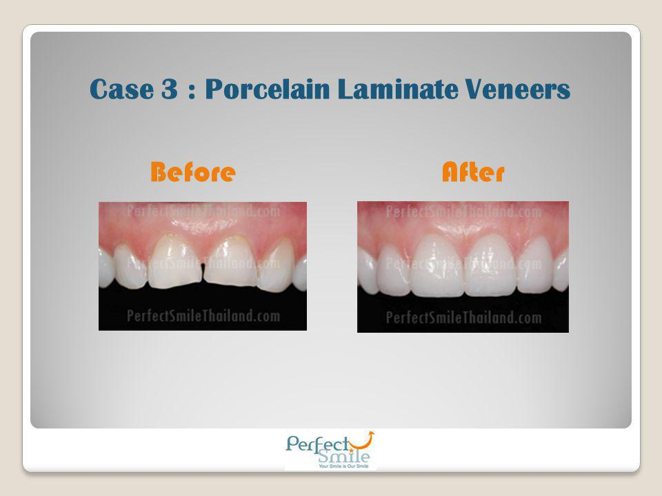 Case 3 : Porcelain Laminate Veneers