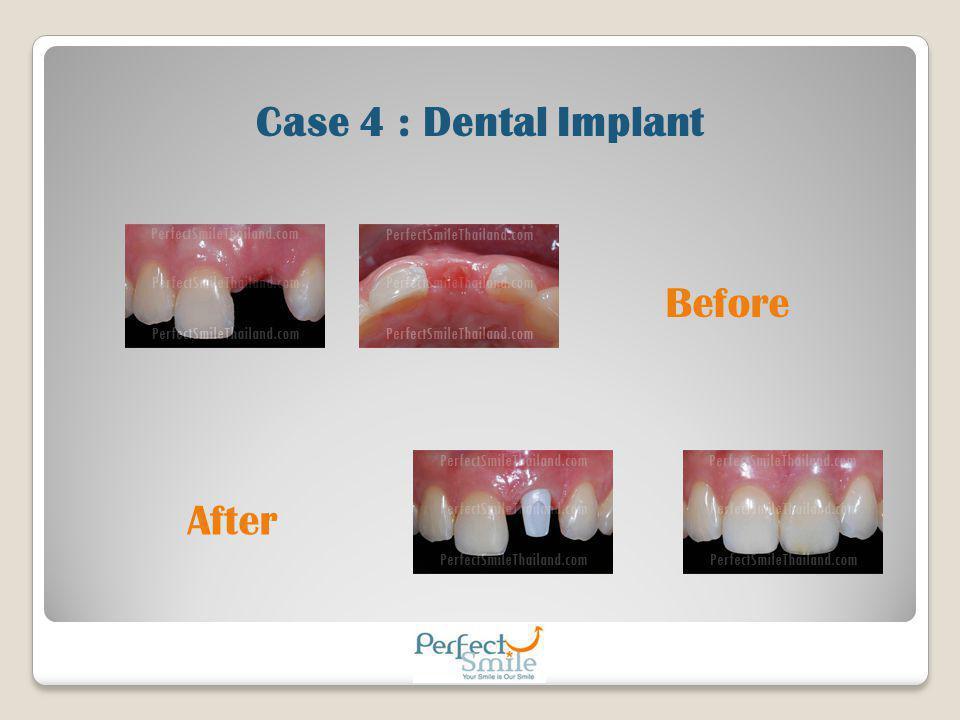 Case 4 : Dental Implant Before After