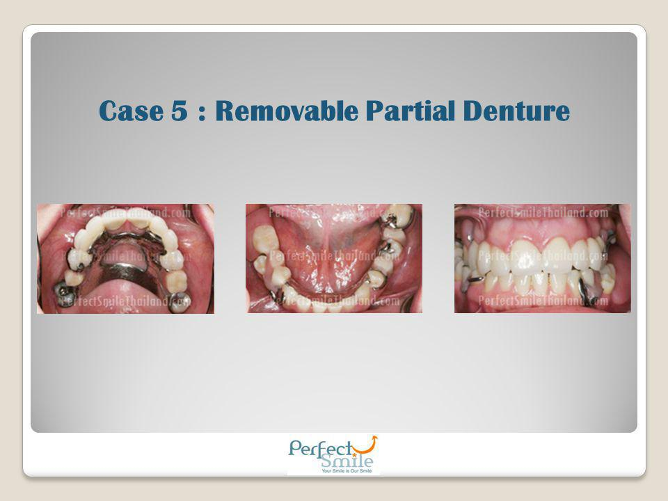 Case 5 : Removable Partial Denture