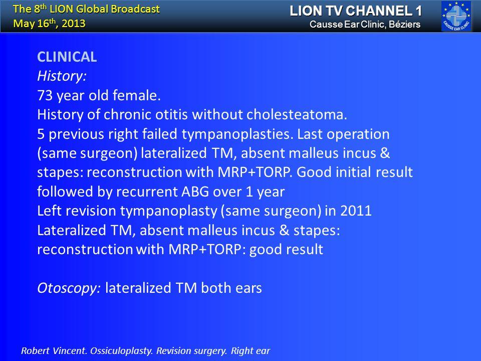 History of chronic otitis without cholesteatoma.