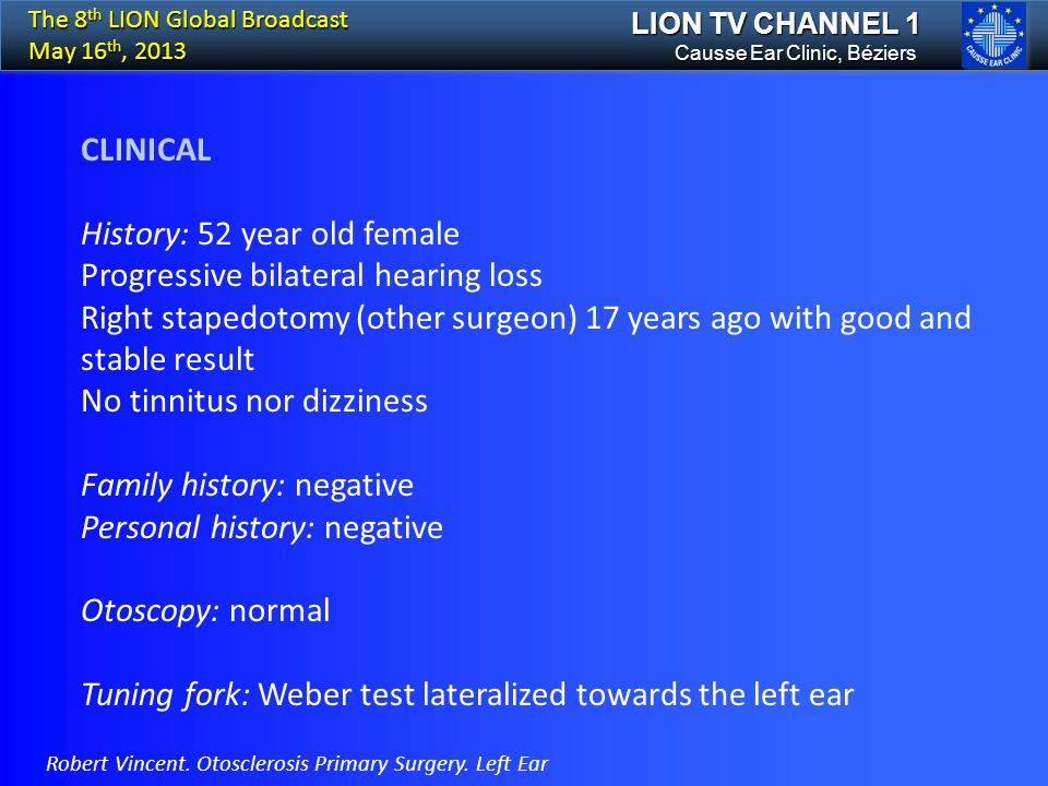 History: 52 year old female Progressive bilateral hearing loss