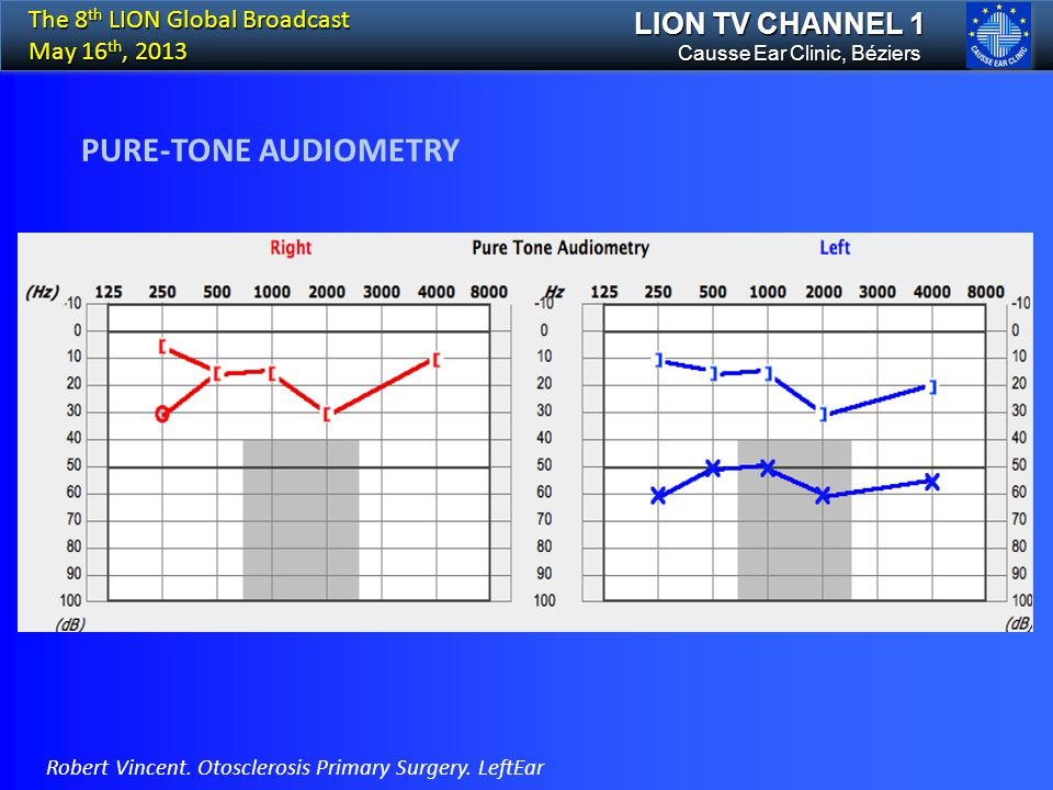 PURE-TONE AUDIOMETRY LION TV CHANNEL 1