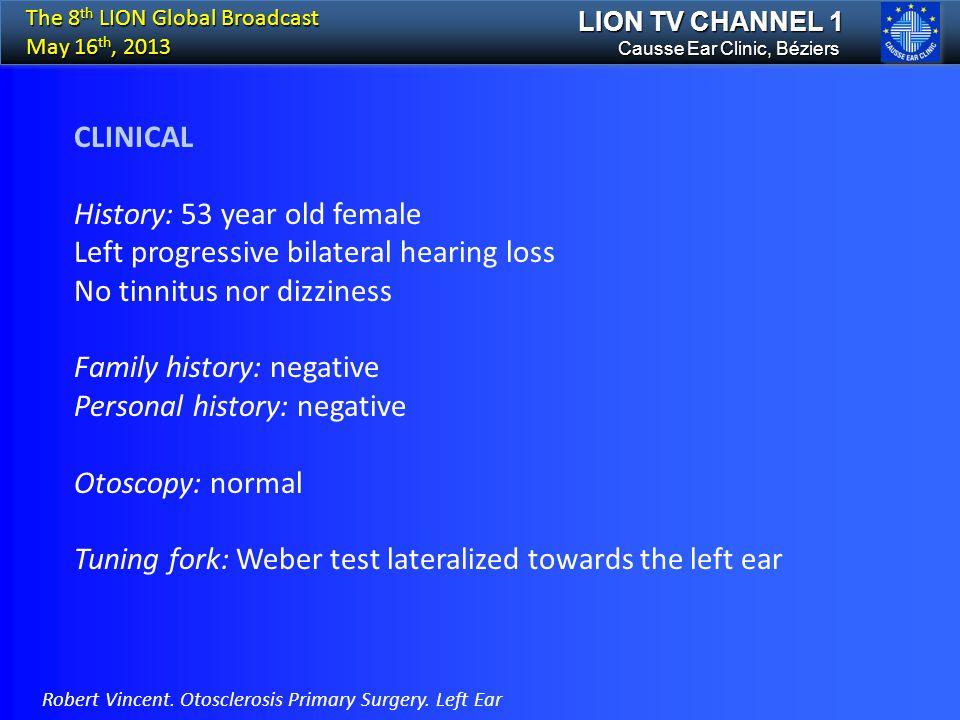History: 53 year old female Left progressive bilateral hearing loss