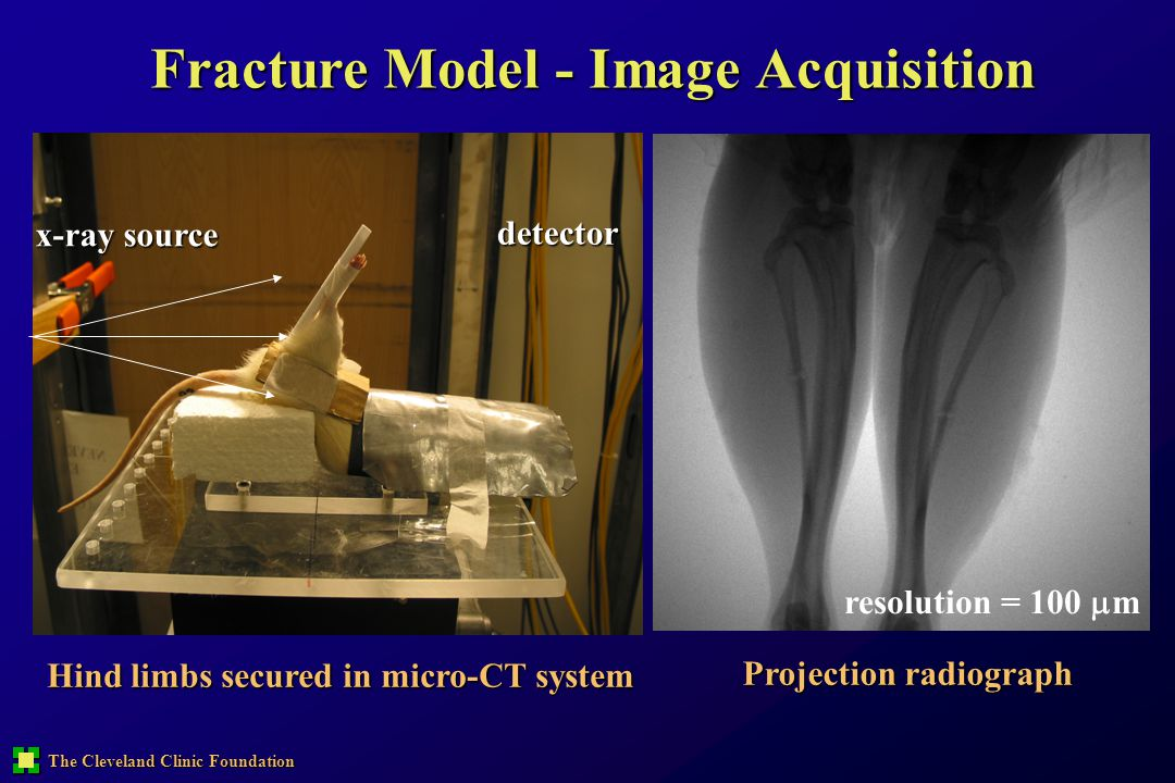 Fracture Model - Image Acquisition