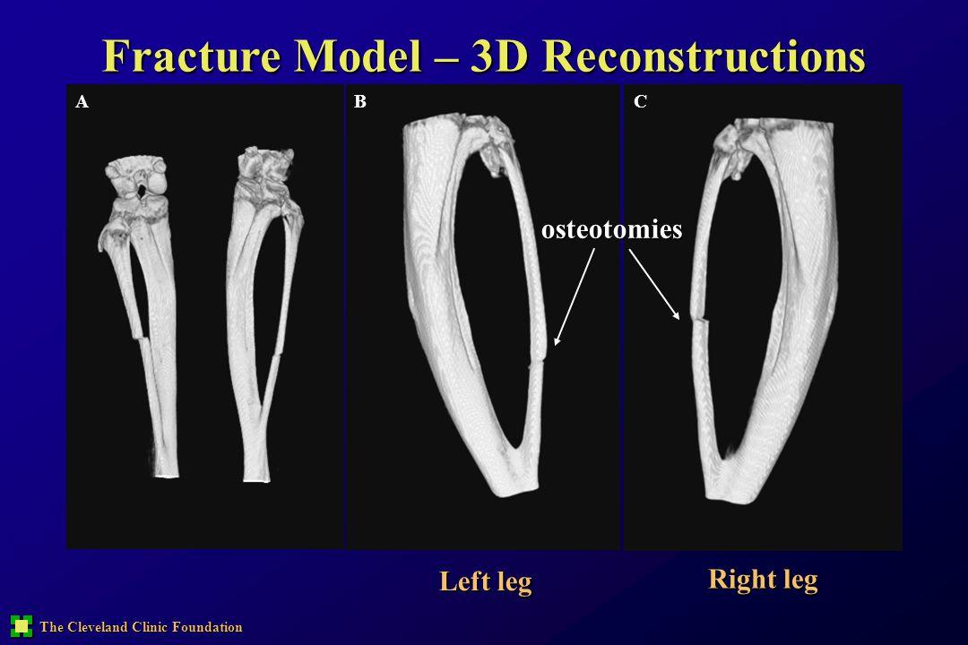 Fracture Model – 3D Reconstructions