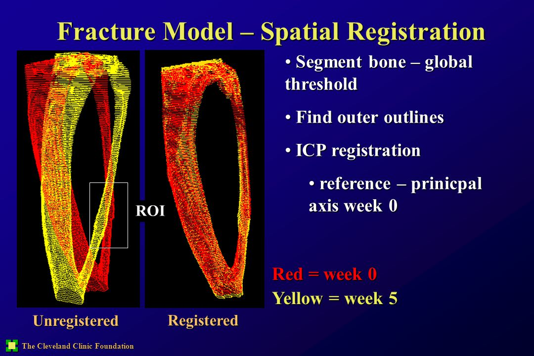 Fracture Model – Spatial Registration