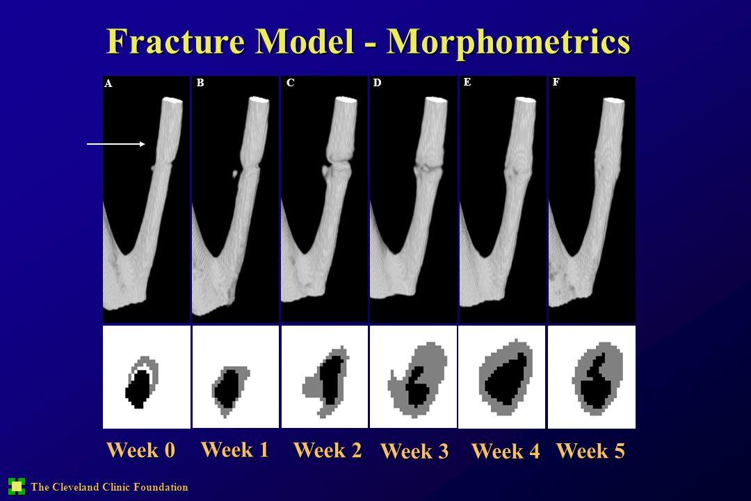 Fracture Model - Morphometrics