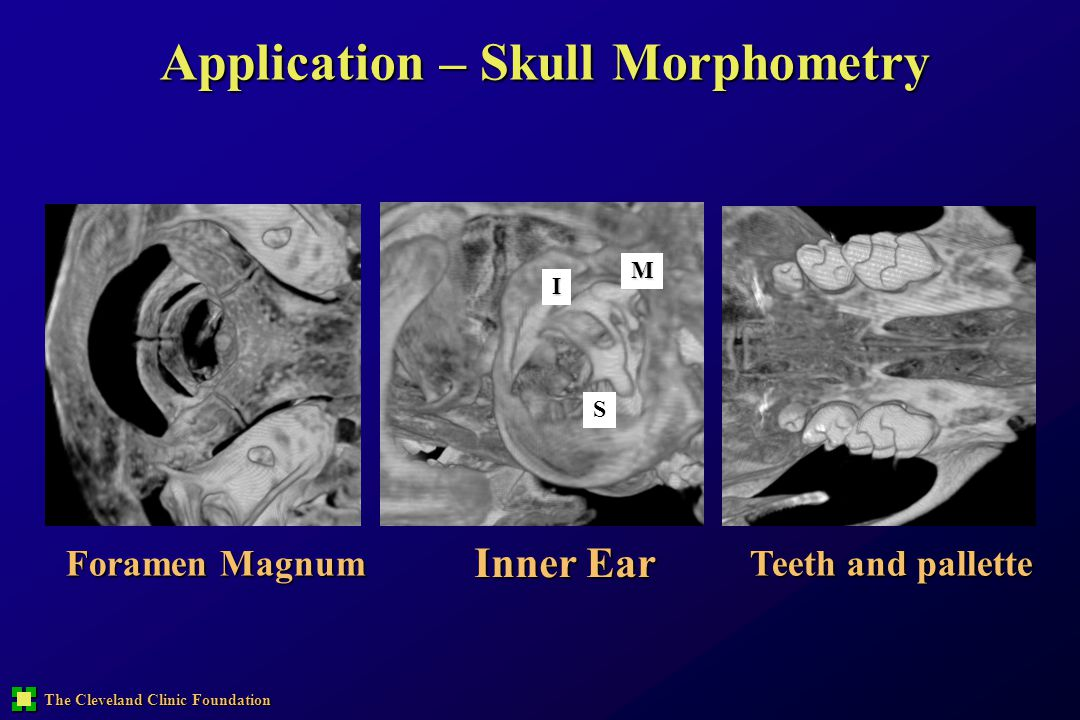 Application – Skull Morphometry