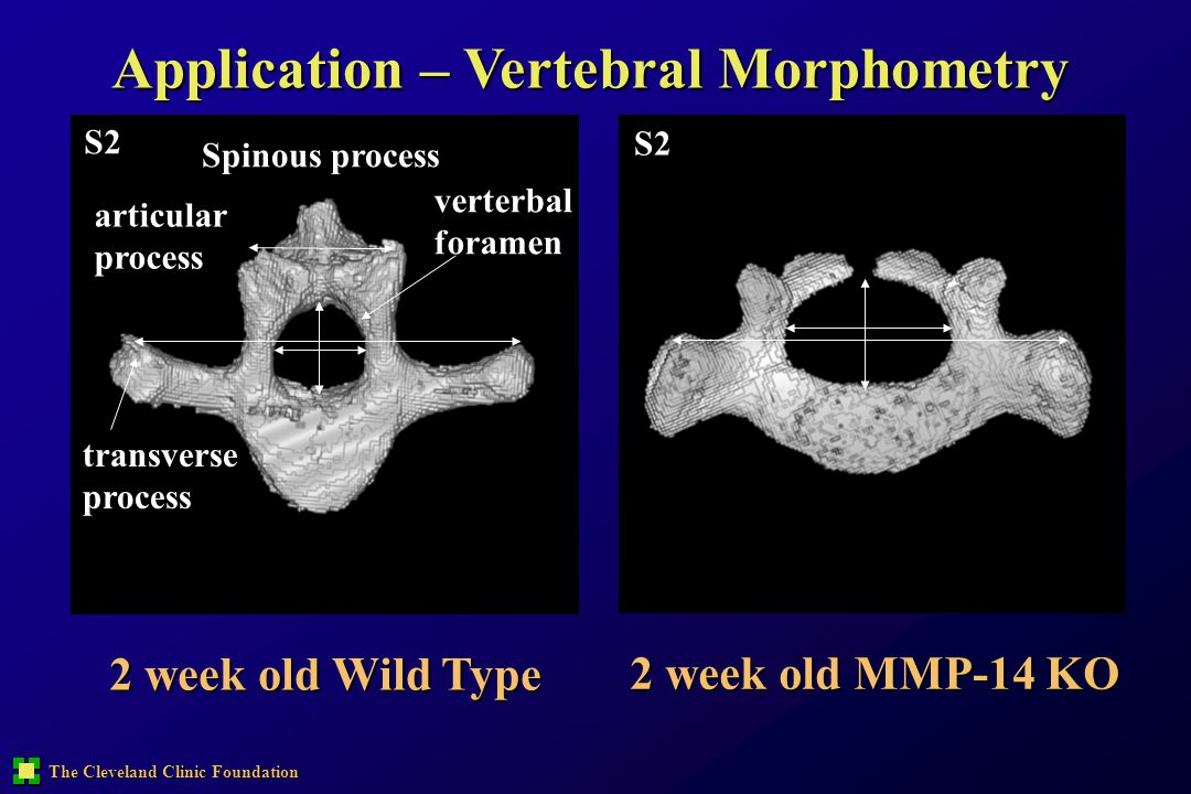 Application – Vertebral Morphometry