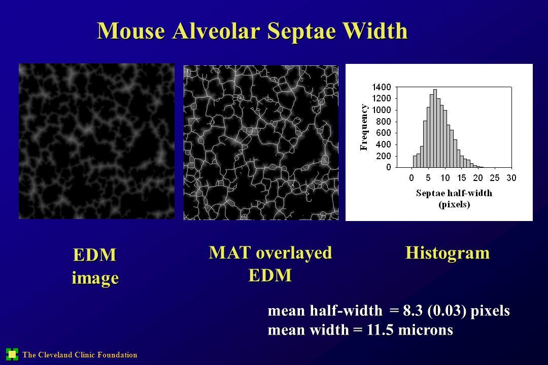 Mouse Alveolar Septae Width