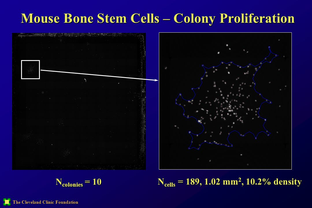 Mouse Bone Stem Cells – Colony Proliferation