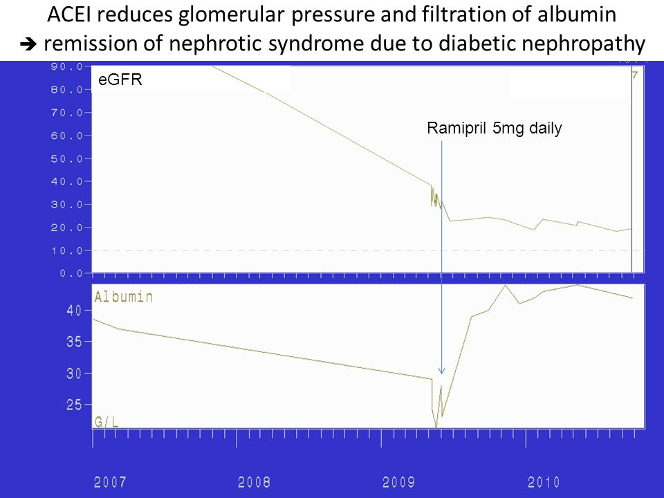 ACEI reduces glomerular pressure and filtration of albumin  remission of nephrotic syndrome due to diabetic nephropathy