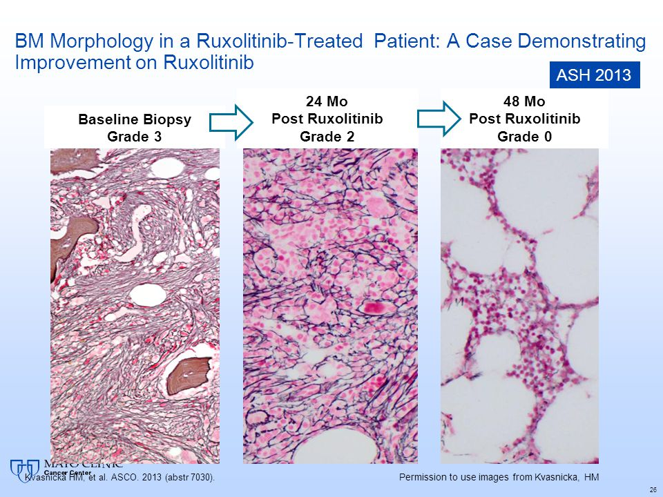 BM Morphology in a Ruxolitinib-Treated Patient: A Case Demonstrating Improvement on Ruxolitinib