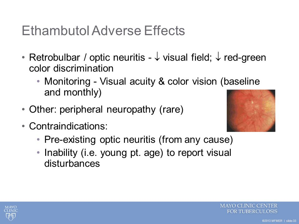 Ethambutol Ocular Side Effects