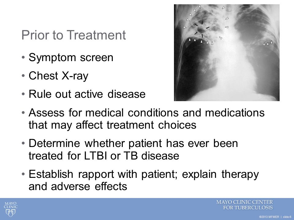 Prior to Treatment Symptom screen Chest X-ray Rule out active disease