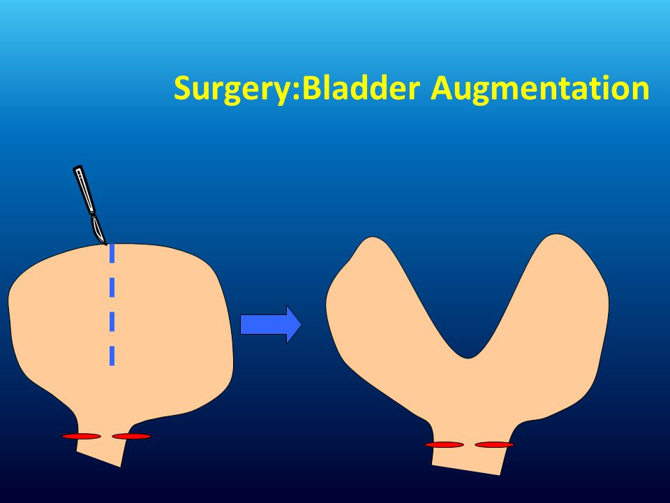 Surgery:Bladder Augmentation