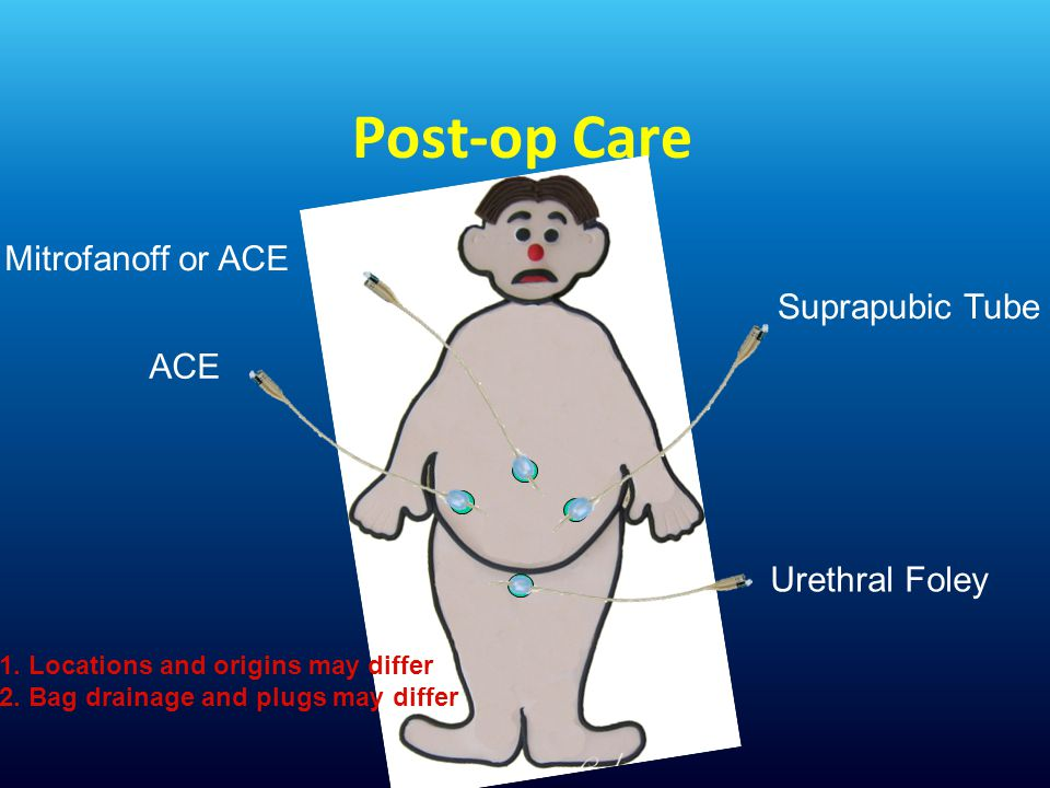 Post-op Care Mitrofanoff or ACE Suprapubic Tube ACE Urethral Foley