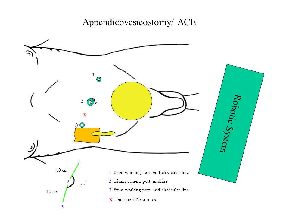 Appendicovesicostomy/ ACE