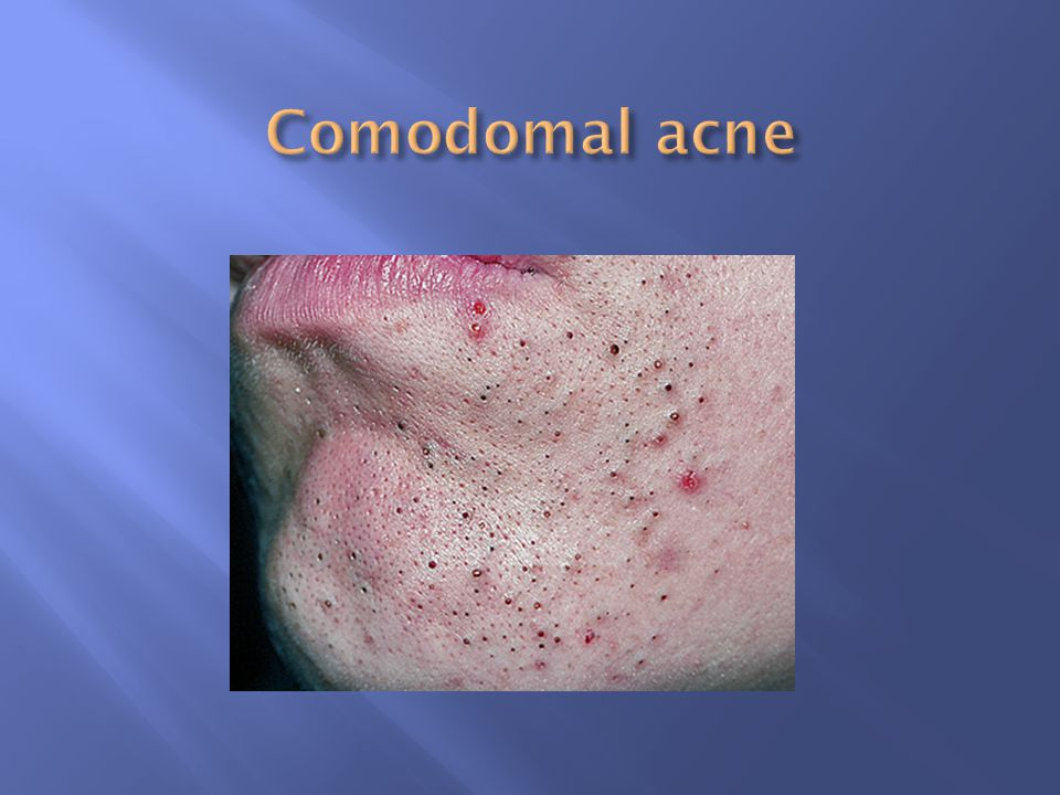 Comodomal acne