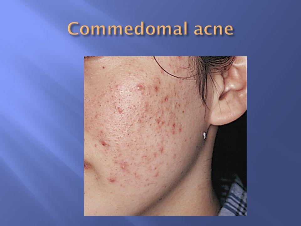 Commedomal acne
