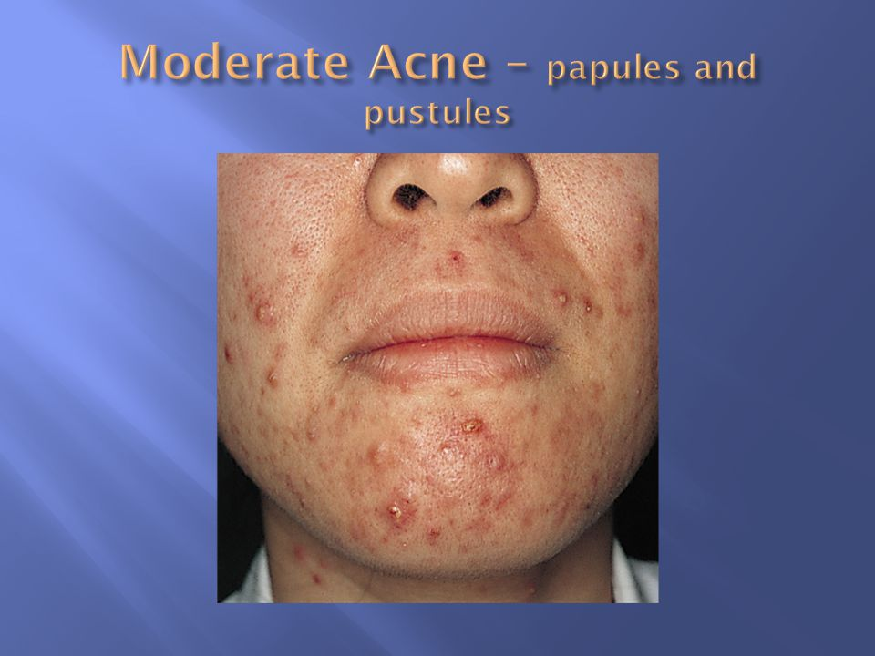 Moderate Acne – papules and pustules