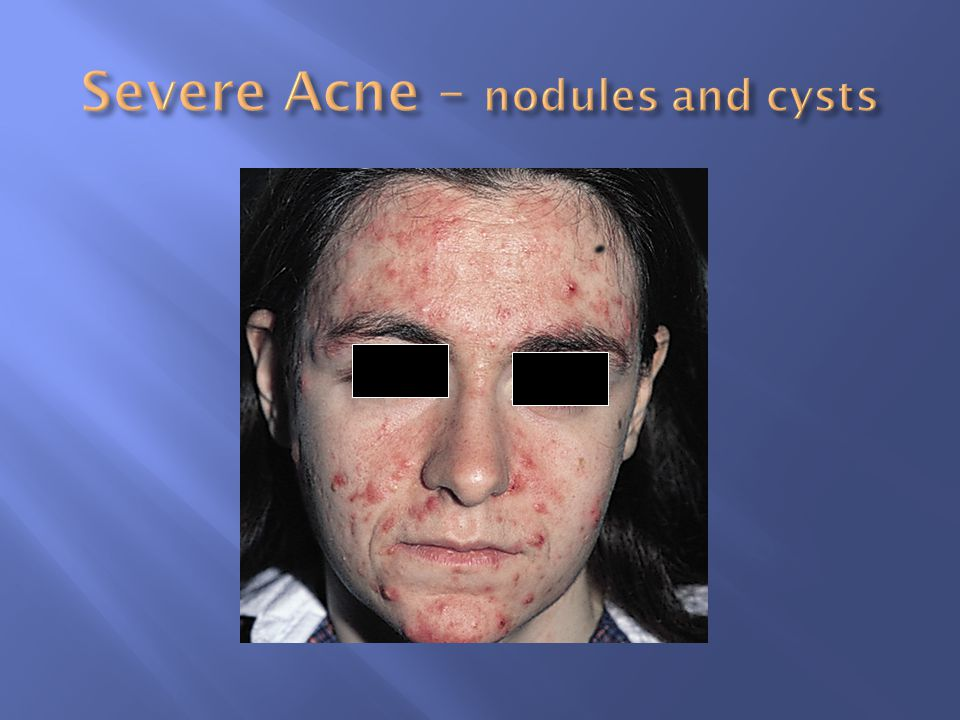 Severe Acne – nodules and cysts