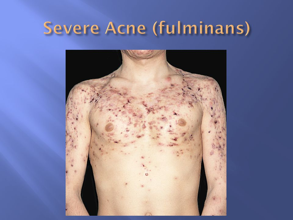 Severe Acne (fulminans)